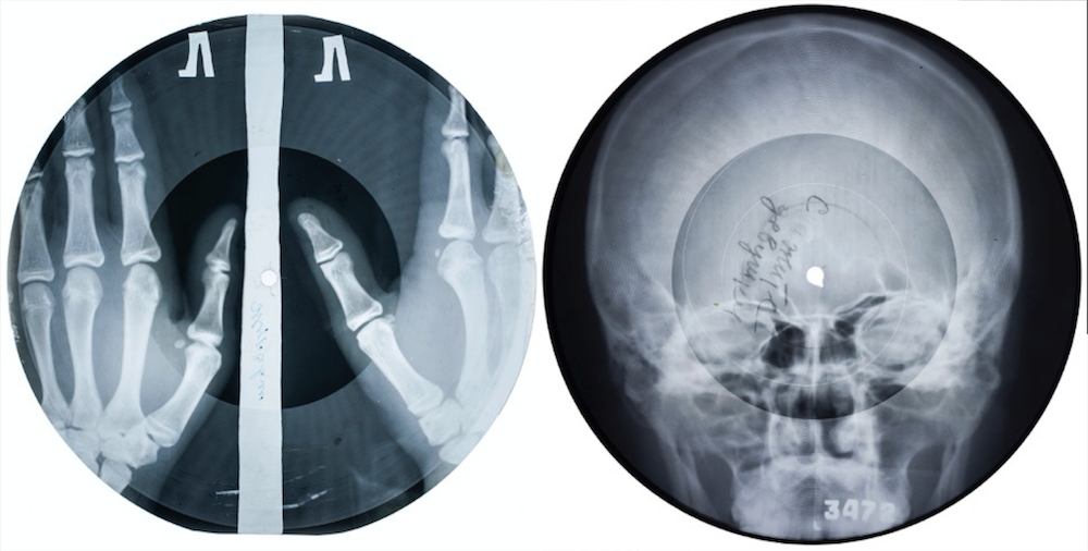 X-ray records. Image courtesy Stephen Coates/The X-Ray Audio Project