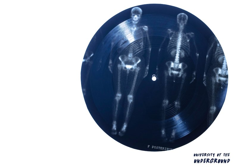 These artists are protesting against censorship with subversive, Soviet-style X-ray vinyls